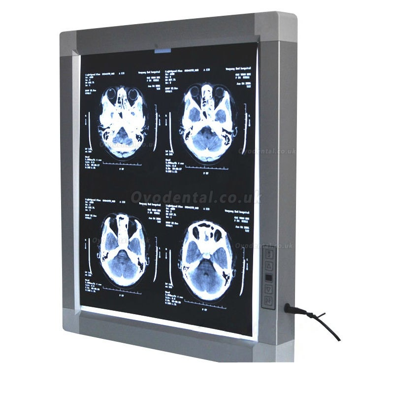 JINDETECH Dental X Ray Film Viewer Medical Diagnostic E.N.T LED Illuminator View Box