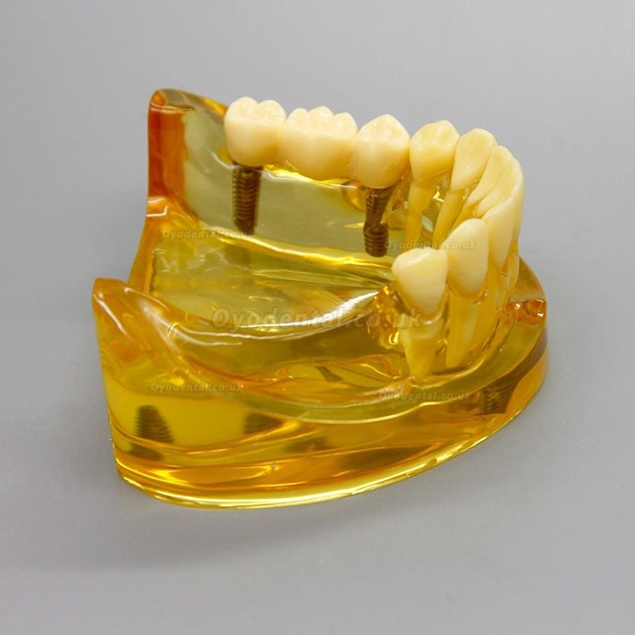 Dental Lower Jaw Implant Model With 2 Implants Bridges 2011
