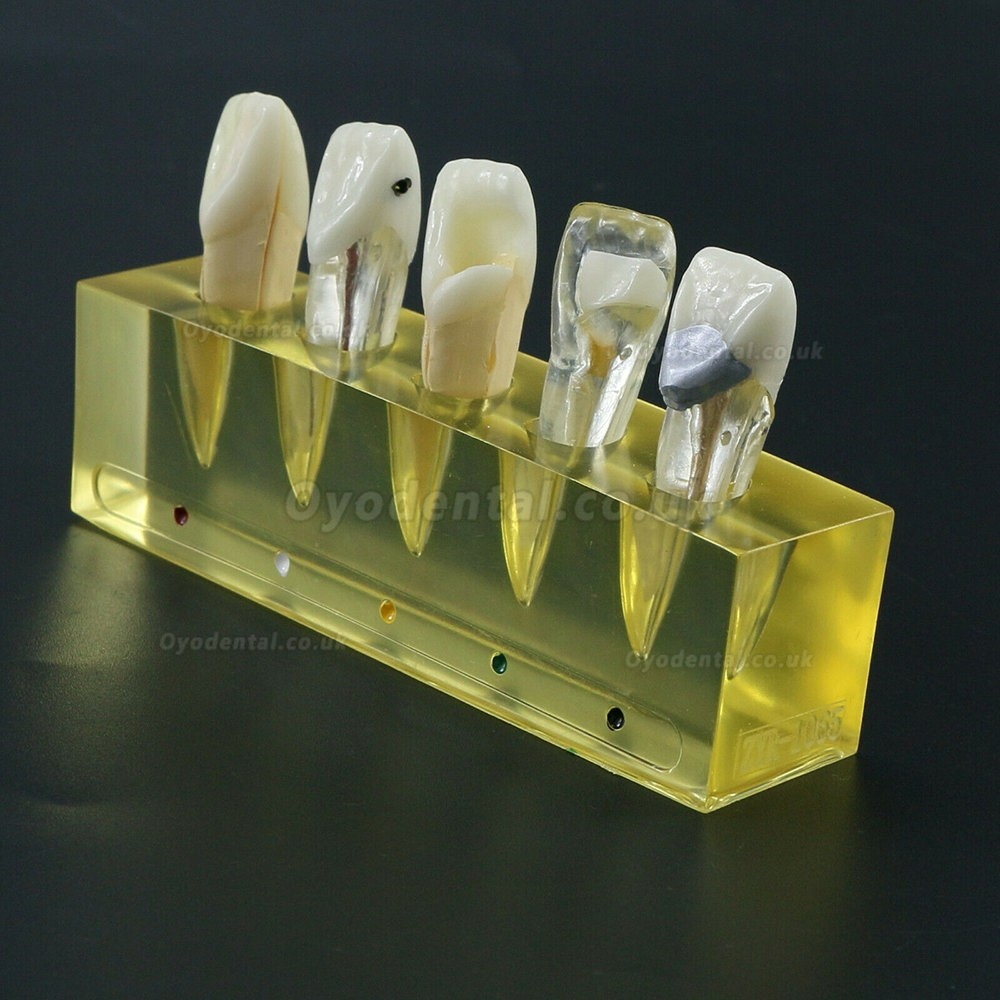 Dental Teeth Model 5 Stages Demonstration Endodontic Treatment Root Canal Incisor
