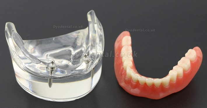 Dental Teeth Model Overdenture Inferior with 2 Implants Study Demo Model 6002 01