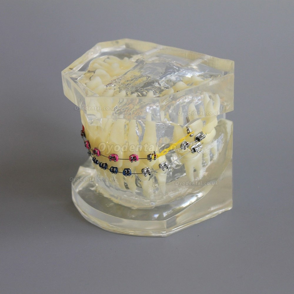 Dental Orthodontic Demonstration Practice Model With Metal Bracket Archwire